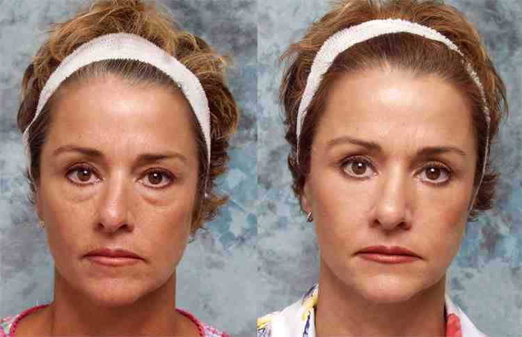 Ptosis surgery herbal recovery - Retrace Health - ptosis surgery