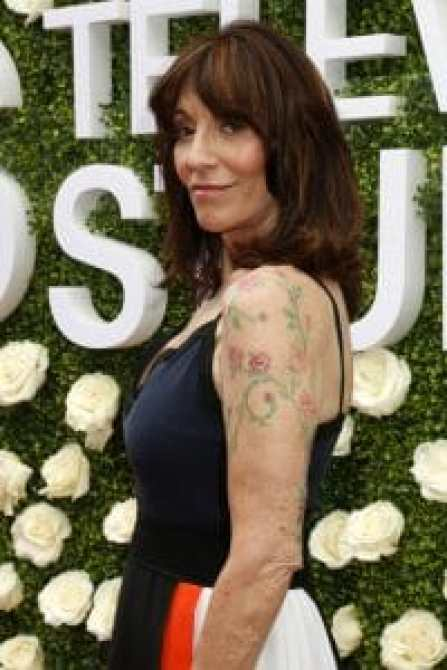 Katey Sagal was hospitalized after being struck by a car