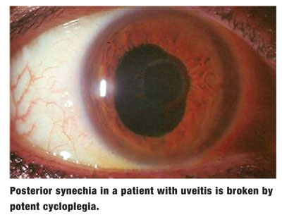 Open Your Eyes to Cycloplegia