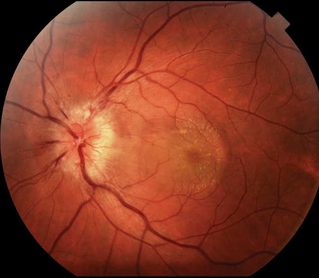 Presumed Ocular Histoplasmosis - The Bugs Behind Infectious