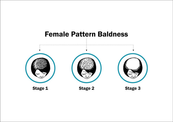Female Pattern Baldness - Symptoms, Causes, Treatment  Prevention