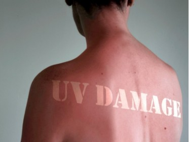 picture of uv damaged skin