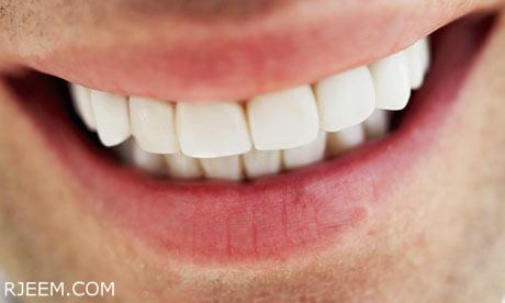 وصفة تبييض الاسنان