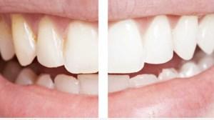 3 طرق مجربة  لتبييض الاسنان طبيعيا