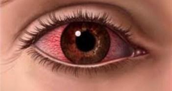 كيفية علآج ألم العين