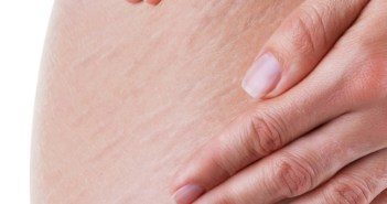 3 خلطات سحرية مجربة للتخلص نهائيا من السيلوليت