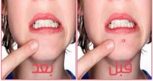 ما هي أسباب القيح في حبوب الوجه؟