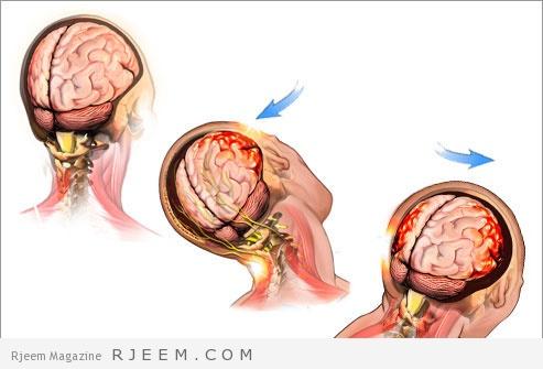 الرضوض الدماغية