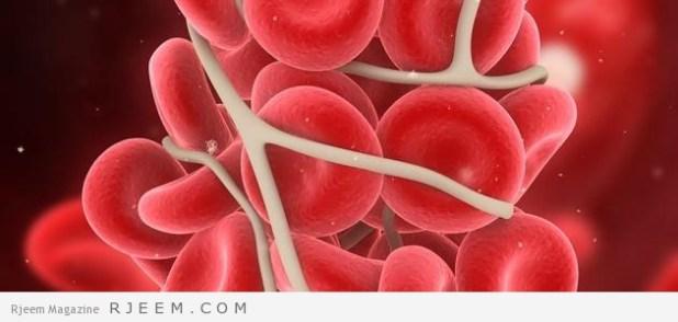 مرض سرطان الدم - اسباب وعلاج اللوكيميا