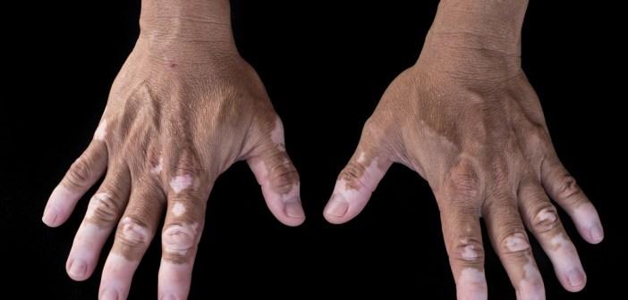 البهاق - اسباب وعلاج مرض البهاق