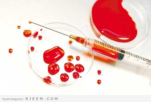 فقر الدم - اسباب وعلاج الانيميا