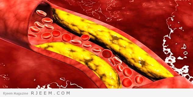 علاج الكولسترول - علاجات منزلية للكولسترول
