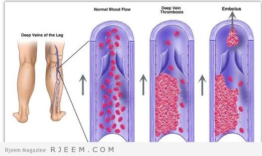 دوالي الساق - علاجات منزلية لدوالي الساقين