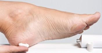 تشقق القدمين - وصفات منزلية لعلاج تشقق القدمين
