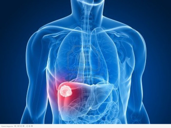 التهاب الكبد الوبائي