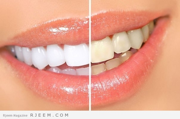 وصفات لتبييض الاسنان