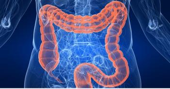 6 اطعمة تساعد في الوقاية من سرطان القولون