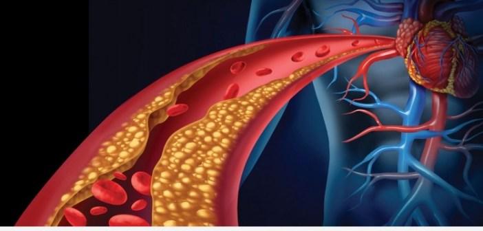 4 نصائح لتخفيض الكولسترول