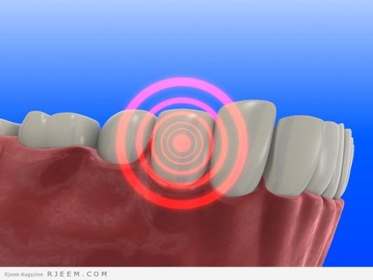 24 علاج منزلي لوجع الاسنان