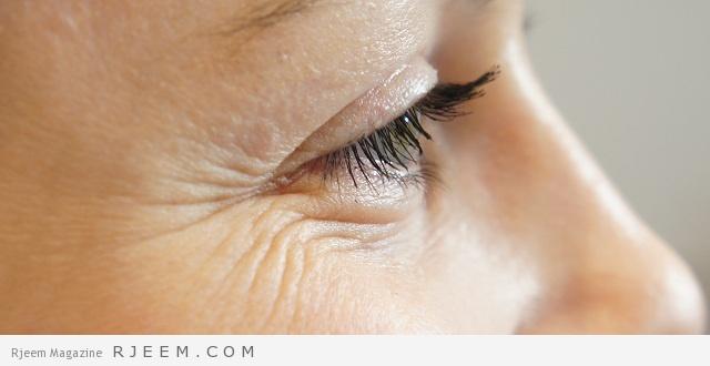 20 وصفة طبيعية لعلاج تجاعيد البشرة