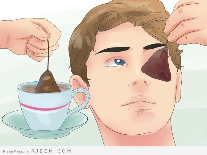 6 حلول سريعة لعلاج انتفاخ الجفون