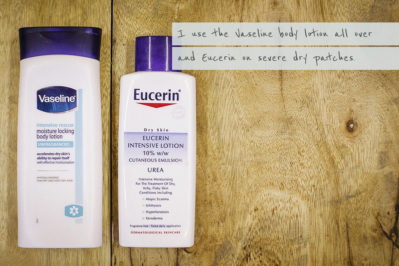 Coping With Eczema & Reactive Skin On W day.