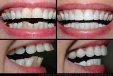 dentist 15