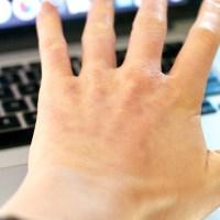 healing hands, eyeball liquid, and second skins (ToL #168)