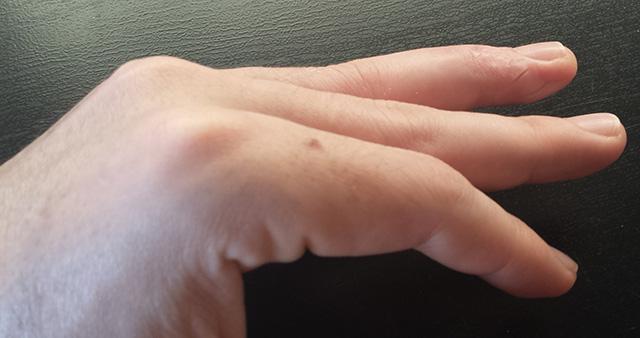 Dedo en mazo (después de nueve días de inmovilización)