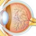Glaucoma: Detéctalo a Tiempo
