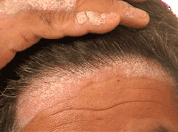 Scalp Eczema Is A Type Of That Causes Inflamed Itchy Dry Skin To Form On Your