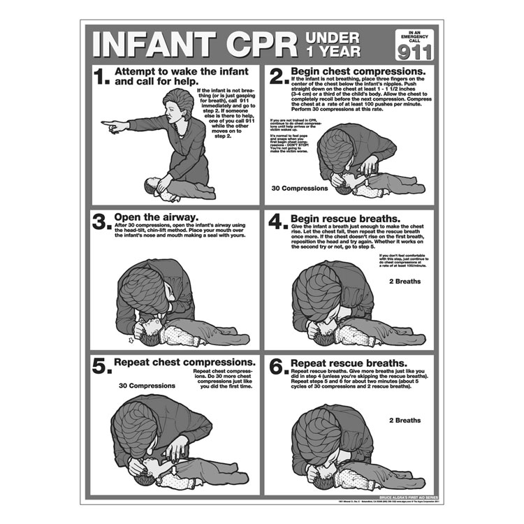 CPR Chart Infant (50/Pad)