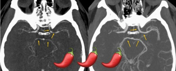 After Eating a Carolina Reaper, a Man Ended Up in Hospital For an