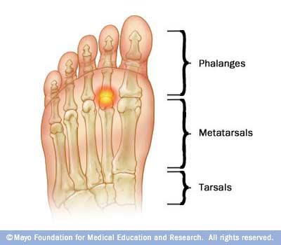 Metatarsalgia, Morton\u0027s Neuroma, and Ball of Foot Pain