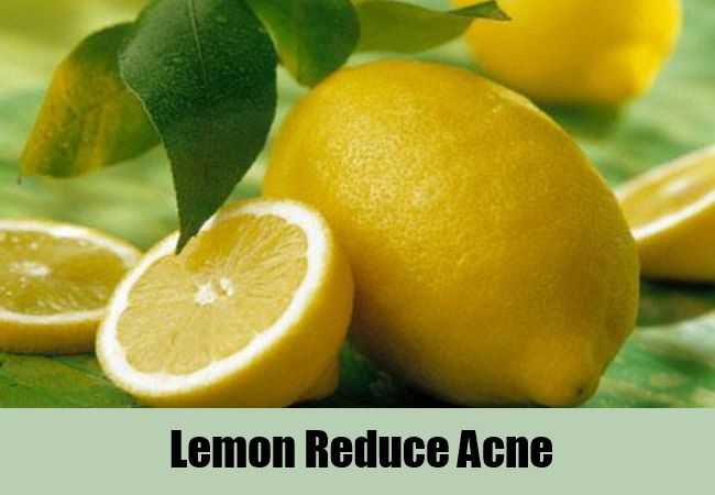 To Cure Pimples Naturally