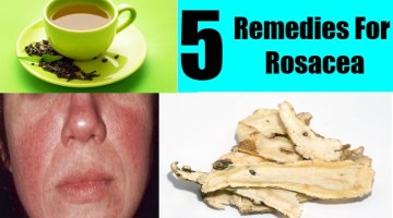 5 Remedies For Rosacea