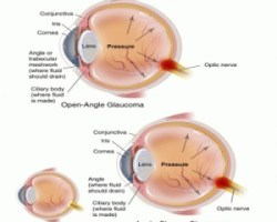 Natural Cure For Glaucoma