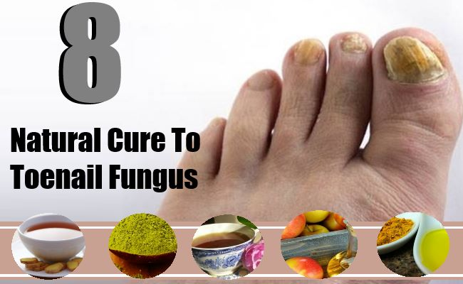 Natural Cure To Toenail Fungus