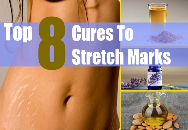 Top 8 Cures To Stretch Marks