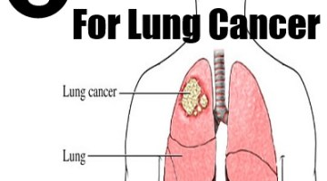 5 Cures-For Lung Cancer