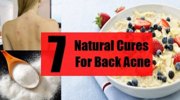 7 Natural Cures For Back Acne