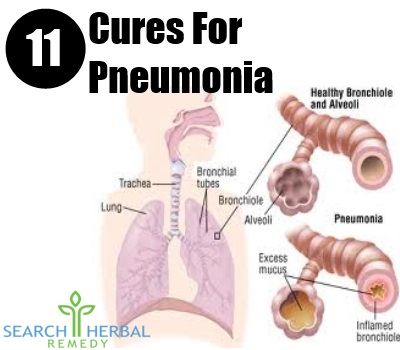 How To Cure Pneumonia Naturally At Home