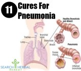11 Cures For Pneumonia