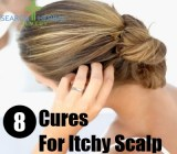 8 Cures For Itchy Scalp