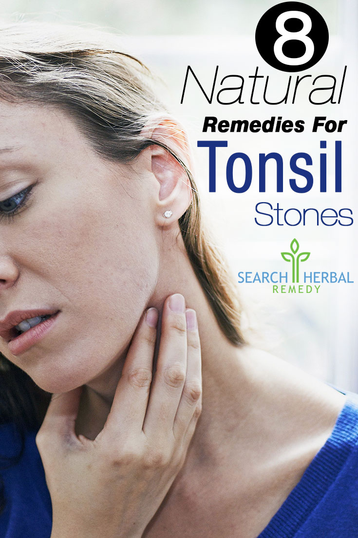 8-natural-remedis-for-tonsil-stones