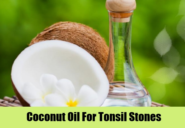 Coconut Oil For Tonsil Stones