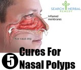 5 Cures For Nasal Polyps