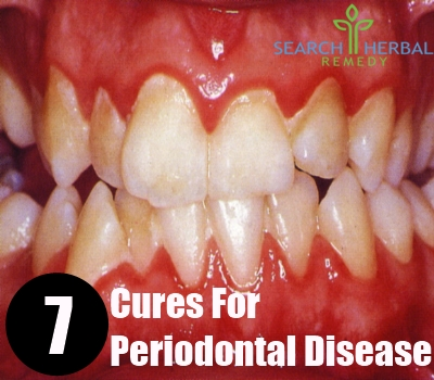 7 Cures For Periodontal Disease
