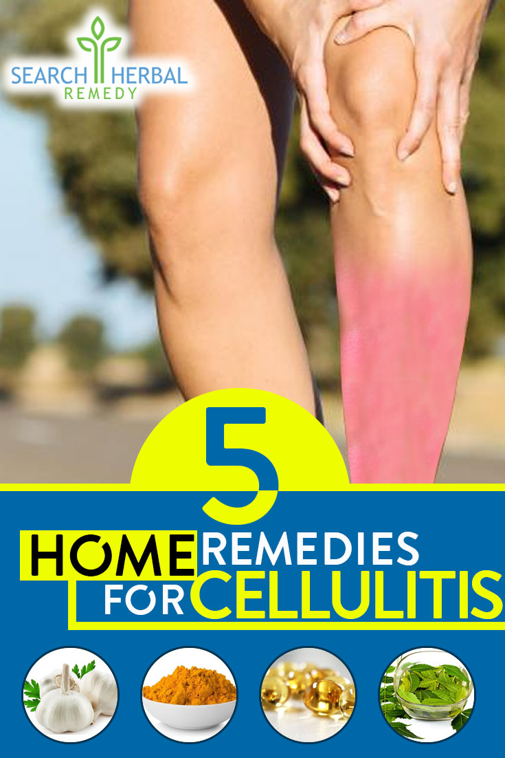 5-remedies-for-cellulitis