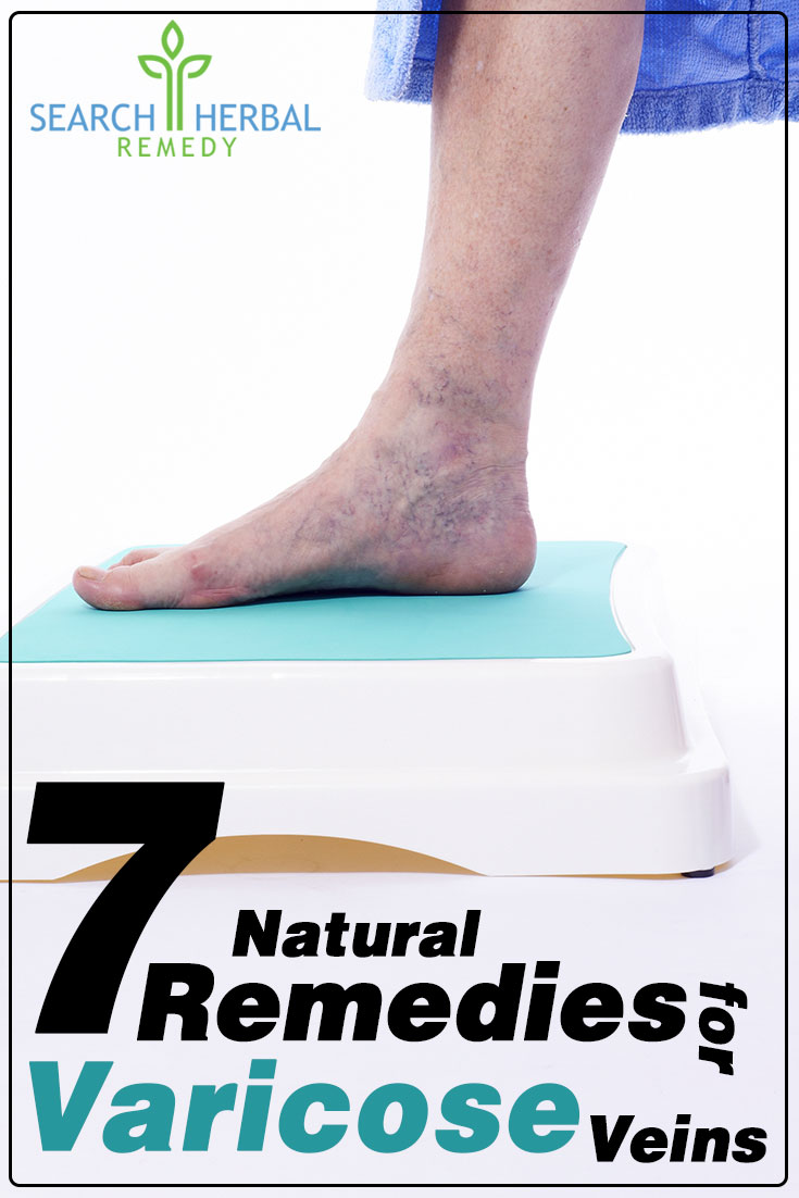 7-natural-remedies-for-varicose-veins